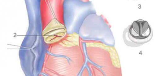 Aort Kapak Ameliyatı
