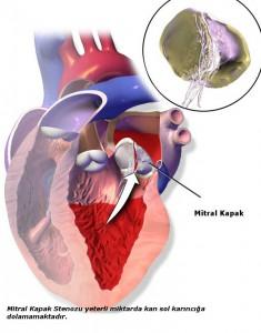 •Mitral kapak, bilindiği gibi sol kulakçık (sol atrium) ile sol karıncığın (sol ventrikül) arasındaki kan transferinde, temiz kanı sol kulakçıktan sol karıncığa taşır