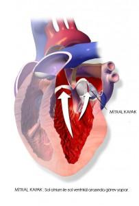 Mitral Valve Prolapse (MVP) ya da Mitral Kapak Prolapsusu (MKP) diye bilinen hastalık; sol atrium (kulakçık) ile sol ventrikül (karıncık) arasında bulunan Mitral Kapağın yapısal bozukluğuna bağlı oluşan doku sarkmaları ile karakterizedir.